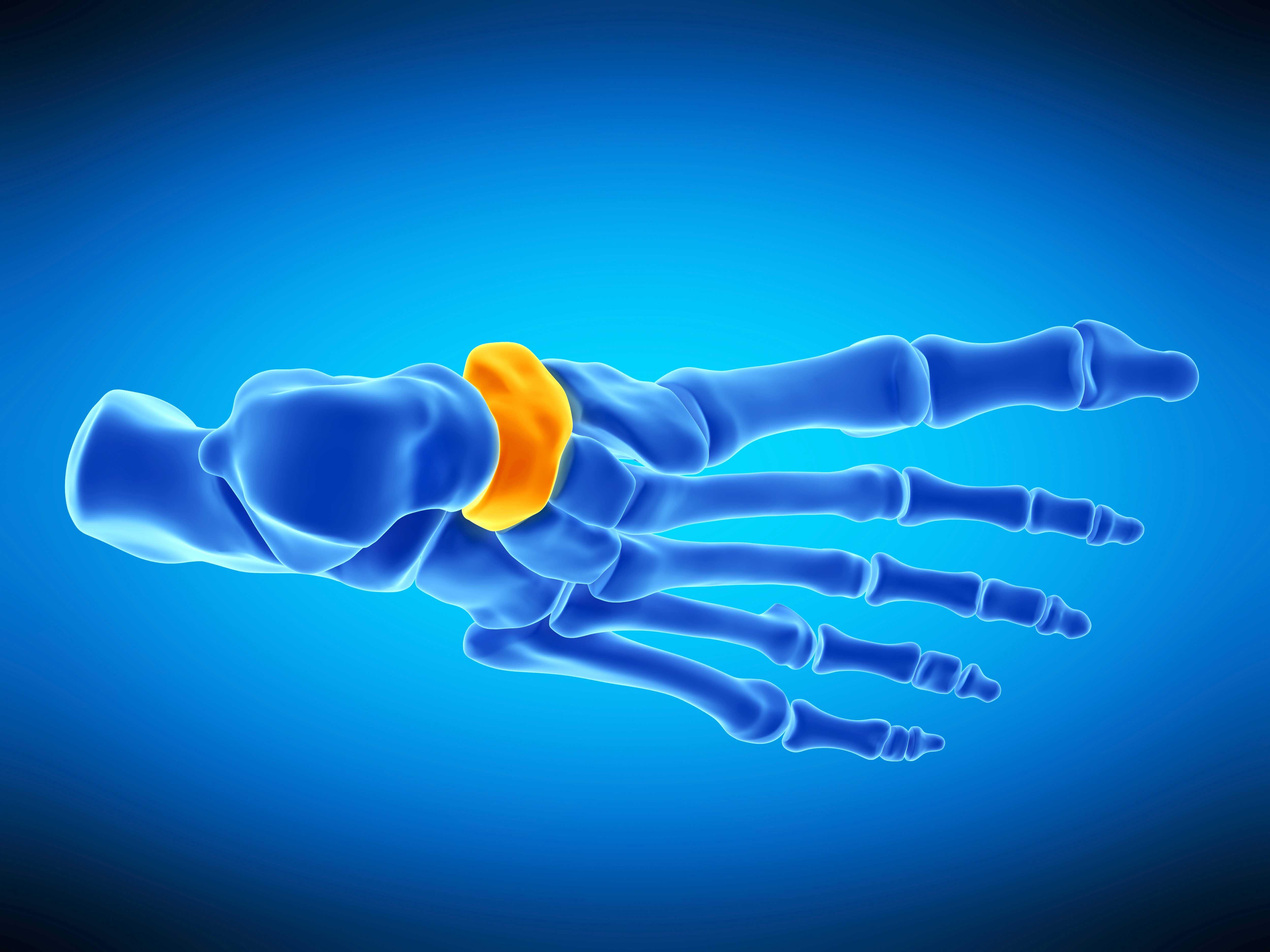 Navicular Injury - Podiatry Camberwell